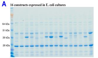 Picture_A_e coli cultures